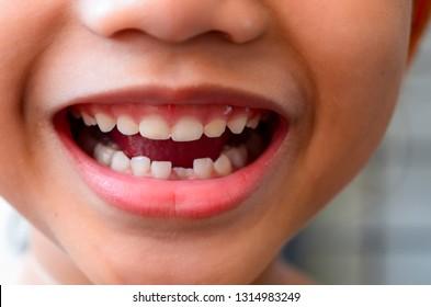 Closeup view kid coated teeth problem. Selective focus.