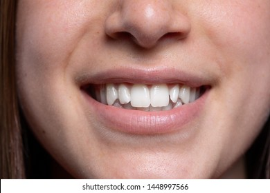 A close-up view in the mouth of a young Caucasian lady. Smiling wide after a visit to the dentist to have her teeth polished white. Results of tooth whitening procedure.