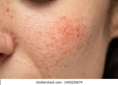 A close-up view on the cheek of a young Caucasian lady with a blotchy red cheek. A common symptom of rosacea and dermatitis in young adults.
