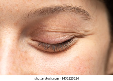 A closeup view on closed the eye of a pretty young woman. Details of a puffy eye bag are viewed, caused by fluid retention beneath the thin skin. Lady before blepharoplasty surgery.