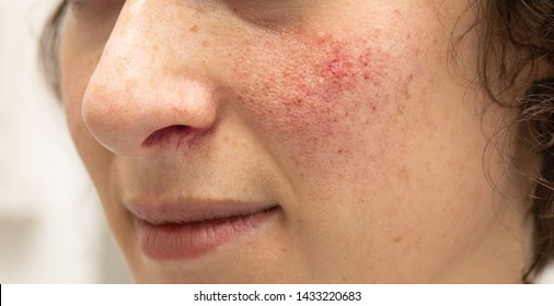 A closeup view on the face of a young woman suffering with rosacea on her cheeks and beneath her nose. Red blotches and prominent blood vessels are seen in detail.