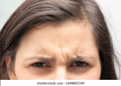 A closeup view on the frowning forehead of a young caucasian girl with brown hair, with dipped eyebrows and vertical wrinkles, unhappy girl close up.