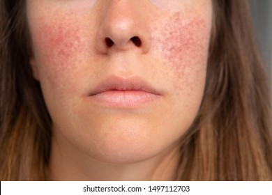 A closeup view on the lower face area of a thirty year old caucasian girl, suffering from red blotchy cheeks and dilated blood vessels, symptomatic of rosacea.