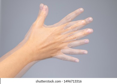 A closeup view on the shaking hand of a person suffering from Parkinson's disease. A progressive and incurable ailment of the central nervous system.