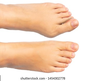 A closeup view on the sore and painful feet of a Caucasian person isolated against a white background. Swollen bunion at the edge of the big toe causes deformity.