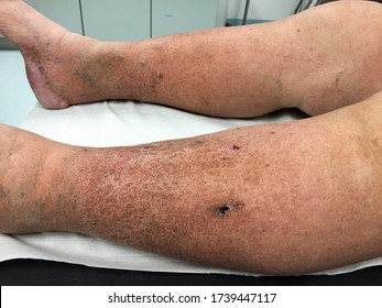 Close-up view of skin changes with hyperpigmentation and impaired wound healing due to chronic venous insufficiency after deep vein thrombosis