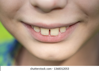 Closeup view of smiling mouth of cute funny white kid. Horizontal color photography.