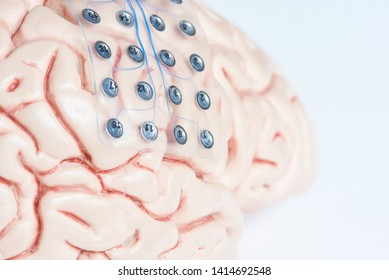 Close-up view of subdural grid electrode for brain waves recording or electroencephalography on the artificial brain model cortex