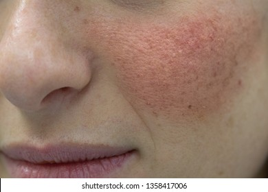 A close-up view of a young Caucasian lady with seborrheic dermatitis over her cheekbone, health and beauty concept.