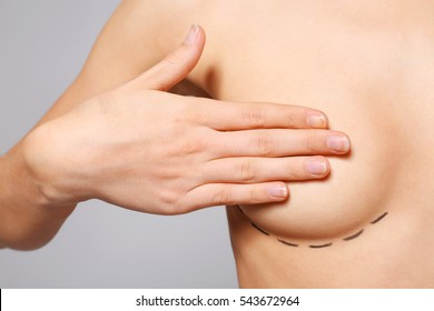 Closeup view of young woman with breasts marked for plastic operation, on light background