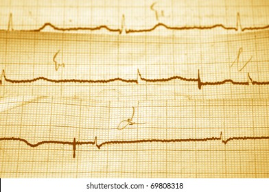 Close-up of vintage cardiogram as background. Monochrome yellow toned image.