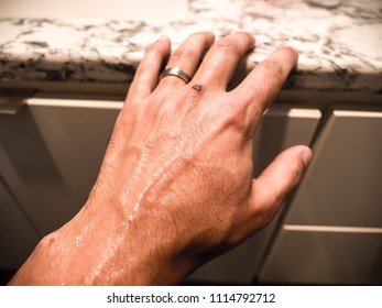 A closeup of a white male hand reaching and touching a countertop above a bathroom cabinet with sweat beading on the back of his hand and wrist with raised veins.