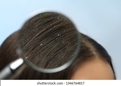 Closeup of woman with dandruff in her hair on color background, view through magnifying glass