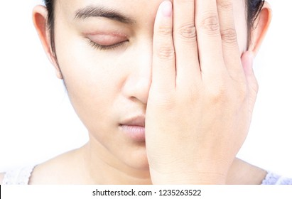 Closeup woman face with eyelid surgery, healthy and beauty concept
