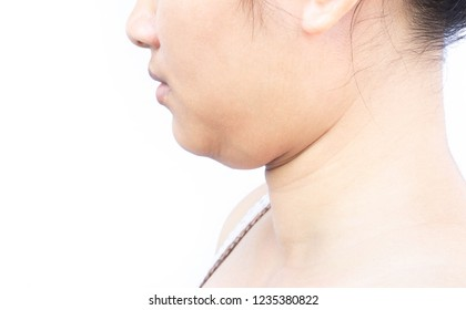 Closeup woman fat on second chin, health care and beauty concept