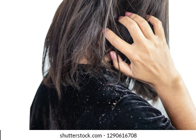 closeup woman hair having problem with dandruff on shoulder