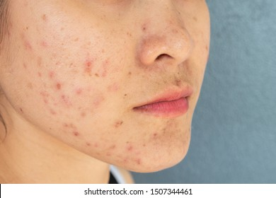 Close-up of woman half face with problems of acne inflammation (Papule and Pustule) on her face. Conceptual of problems on woman skin.