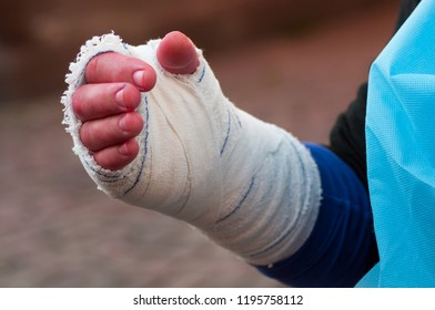 closeup of woman hand with arm bandage after at hand surgery