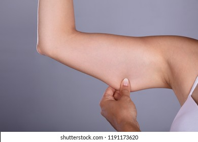 Close-up Of A Woman Holding Arm With Excess Fat On Grey Background