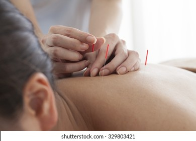 Closeup of woman receiving acupuncture treatment at beauty spa
