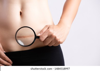 Closeup of woman showing on her belly dark scar from a cesarean section. Healthcare concept.