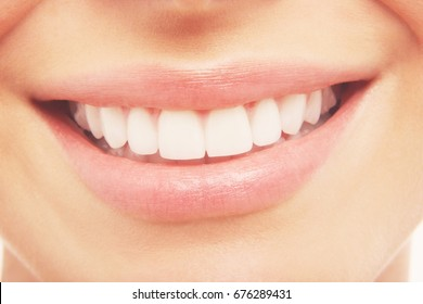 Closeup of woman smiling with prefect white teeth