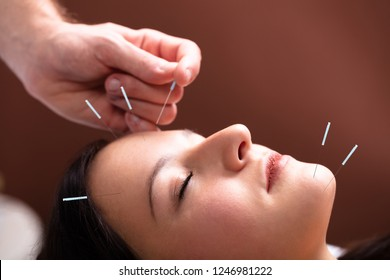 Close-up Of A Woman's Face Receiving Acupuncture Treatment On Her Face In Spa