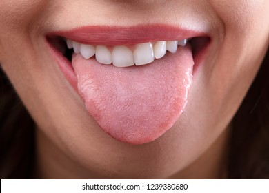 Close-up Of A Woman's Face Showing Her Clean Tongue