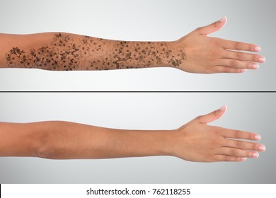 Close-up Of Woman's Hand Before And After Laser Tattoo Removal Treatment