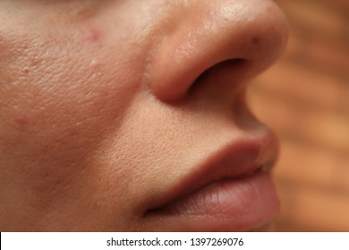 Closeup of woman's skin showing large pores and oily skin on cheek and nose. Oily skin is a common skin issue which can be caused by a number of factors.