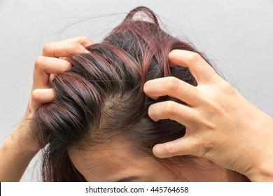 closeup, Women itching scalp