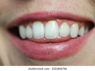 A closeup of women's lips, teeth and tongue slightly sticking out.