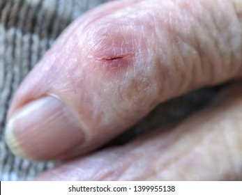closeup wound on a finger of old person