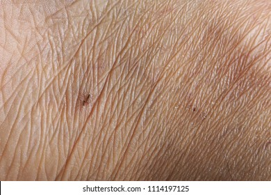 Closeup of wrinkles skin in deep layers. Skin repair and treatment concept for elderly and aged people. Healthcare, medical and aesthetic concept