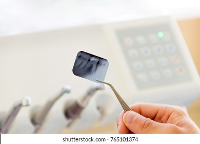 Close-up of x-ray photo of tooth in dentist workplace with dentist equipment and tools for treatment teeth. Dentist workplace.