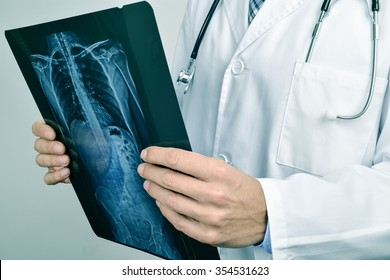 closeup of a young caucasian doctor man observing a skeleton radiograph