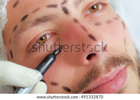 Closeup young mans face preparing for cosmetic surgery, getting lines drawn on skin with black marker, as seen from above