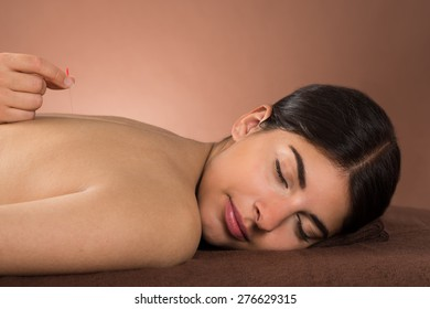 Close-up Of Young Woman With Eyes Closed Receiving Acupuncture Treatment