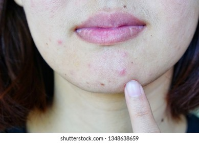 closeup of young woman's face for see problem skin (acne, pimple, rash, pore and blotch), beauty concept