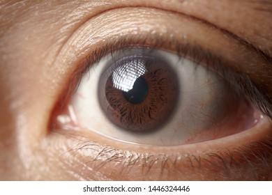 A closr up of an Asian mens eye ball