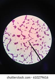 Clostridium botulinum,bacteria gram positive,microscope,science,bacteria,science lab,lab,biology,microbiology,cell,spore,toxin
