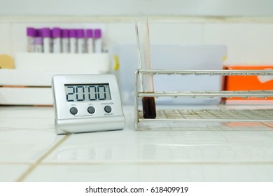 Clotted blood in test tube VCT teasting in laboratory.