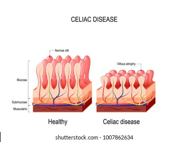 Coeliac disease. celiac disease. normal villi and villous atrophy. small bowel showing coeliac disease manifested by blunting of vill. diagram for medical use