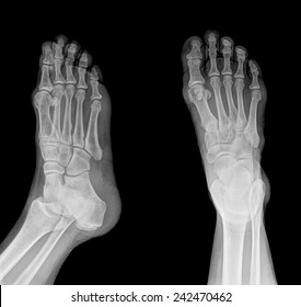 Colection x-ray of  foot