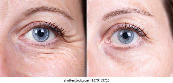 Collage comparison of before and after beauty care. Closeup view of female eyes with and without crow's feet.