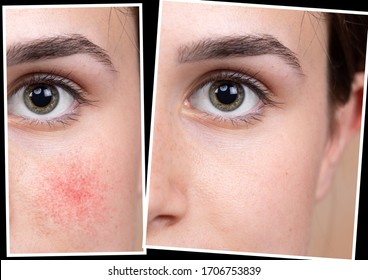 Collage comparison healthy skin and skin suffering rosacea. Young female face closeup. Medicine and health care concept.