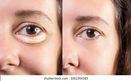 Collage of eyes with and without eye bags