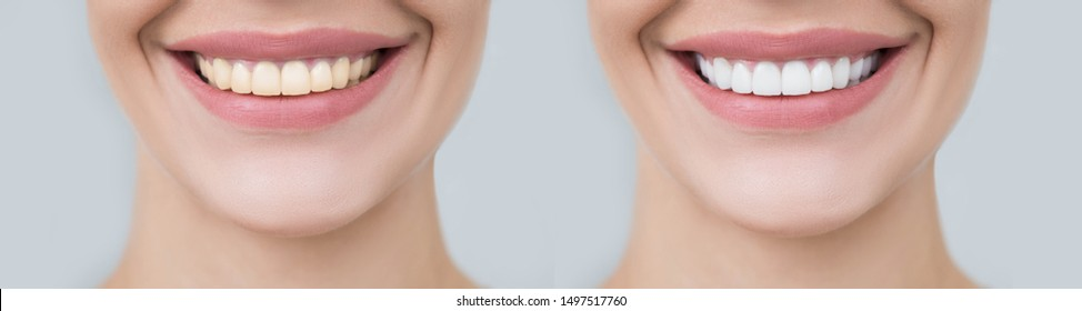 Collage female smile before and after teeth whitening. Advertising procedure whitening smile