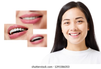 Collage of healthy smiling people. Beautiful asian young woman with white veneers and perfect smile. Tooth care dental medicine. Isolated and copy space.