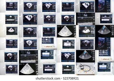 a collage of images of the ultrasound screen with heart studying